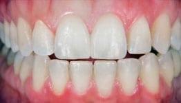 pænere tænder med tandkrone