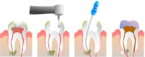Stadier i rodbehandling af tand